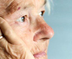 Gerzer Deutschland Alzheimer